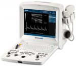 Edan DUS 60 Digital Ultrasonic Diagnostic Image System