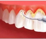 Dental Scaling and Polishing Treatment