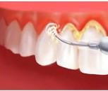 Dental Scaling and Polishing Treatment